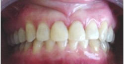 Oclusion-Dental