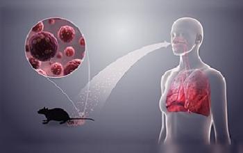 Hantavirus - Síntomas y diagnóstico del hantavirus